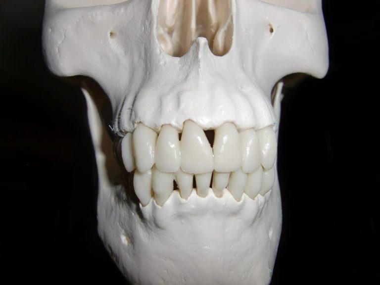 Ortodontyczny aparat stały – co warto o nim wiedzieć?